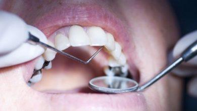 Photo of الحشو المعدني للأسنان خطر على الصحة