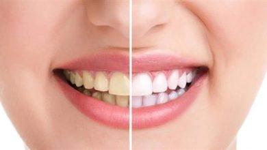 Photo of 5 أخطاء تسبب صفرة أسنانك