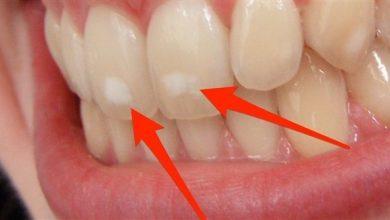 Photo of متى تكون بقع الأسنان مقلقة؟